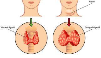 thyroid-goiter-e1502837549647